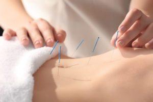 IVF und Akupunktur